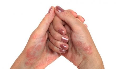 Lower Satisfaction With Biologic Psoriasis Treatment Observed in Women
