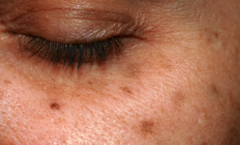 Here's What Lasers And Injectables Do That Topical Skin Care Can't