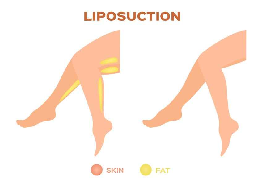 Treating Lipedema With Liposuction May Help Women With 'Painful Fat' Disease