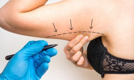 Thinking About Arm Liposuction? You Might Need This Procedure Too