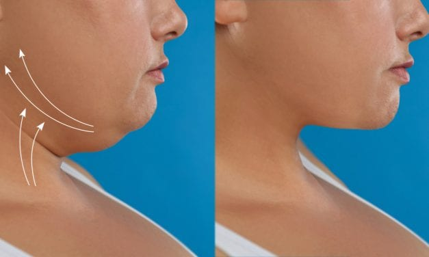 What Causes a Double Chin and How to Get Rid of It, According to a Plastic Surgeon
