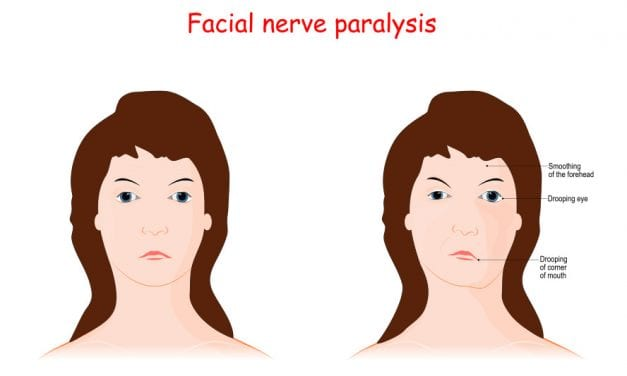 Study Looks at Emotional Toll of Facial Paralysis