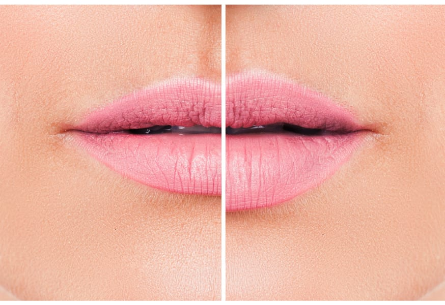 Lip Implants vs Injected Lip Fillers