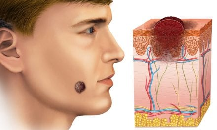 Men With Melanoma Have Worse Survival Rates Than Women