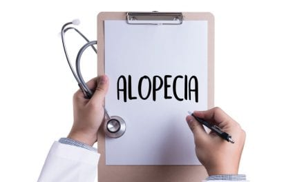 Alopecia Patients May Be At Increased Risk of Heart Attack