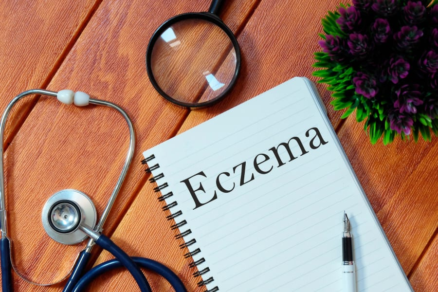 Revving Up Immune System May Help Treat Eczema