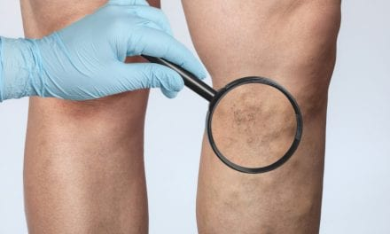 Long-Pulsed Cutera Nd:YAG Lasers Effectively Reduce Cutaneous Vessel Severity in Face and Legs