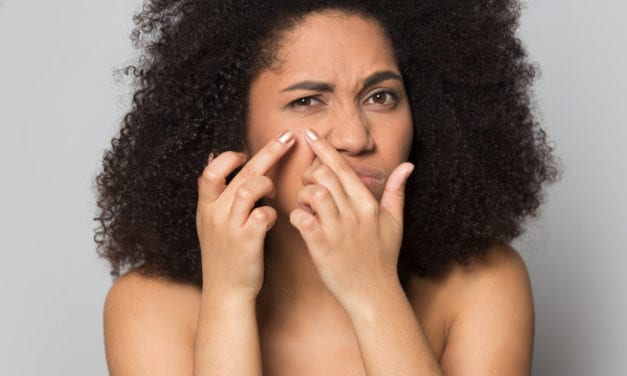 Racial Differences Seen in Acne Treatment for US Patients