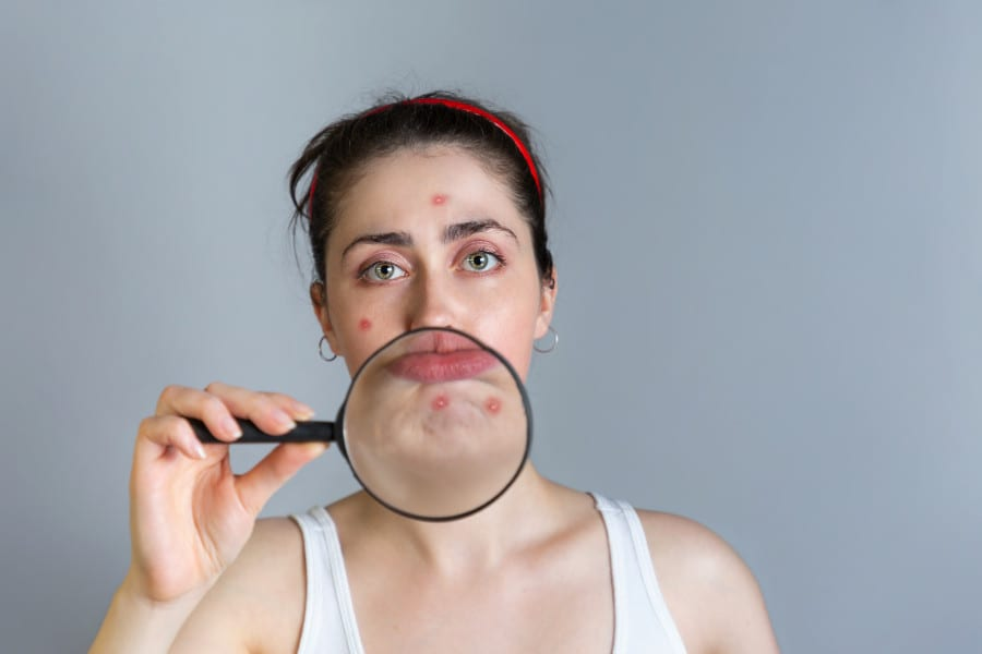 Do You Have Persistent Chin Acne? It Could Actually Be Perioral Dermatitis