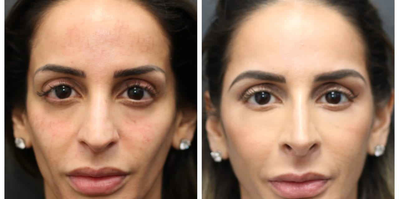 Why the Y-Zone Is a Mistake for Facial Injections, According to One Plastic Surgeon