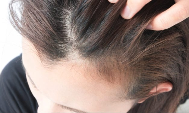 Yes, Women Experience Thinning Hair, Too. Here's Why, and Possible Treatments.