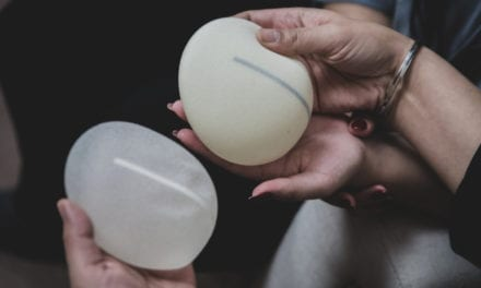 What is the Average Lifespan of Breast Implants?