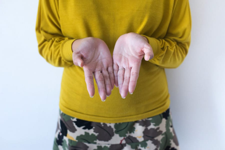 Why Your Hands May Be Peeling This Winter, According to Dermatologists