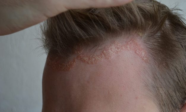 Yes, You Can Get Eczema on Your Scalp and Here's How to Deal with It