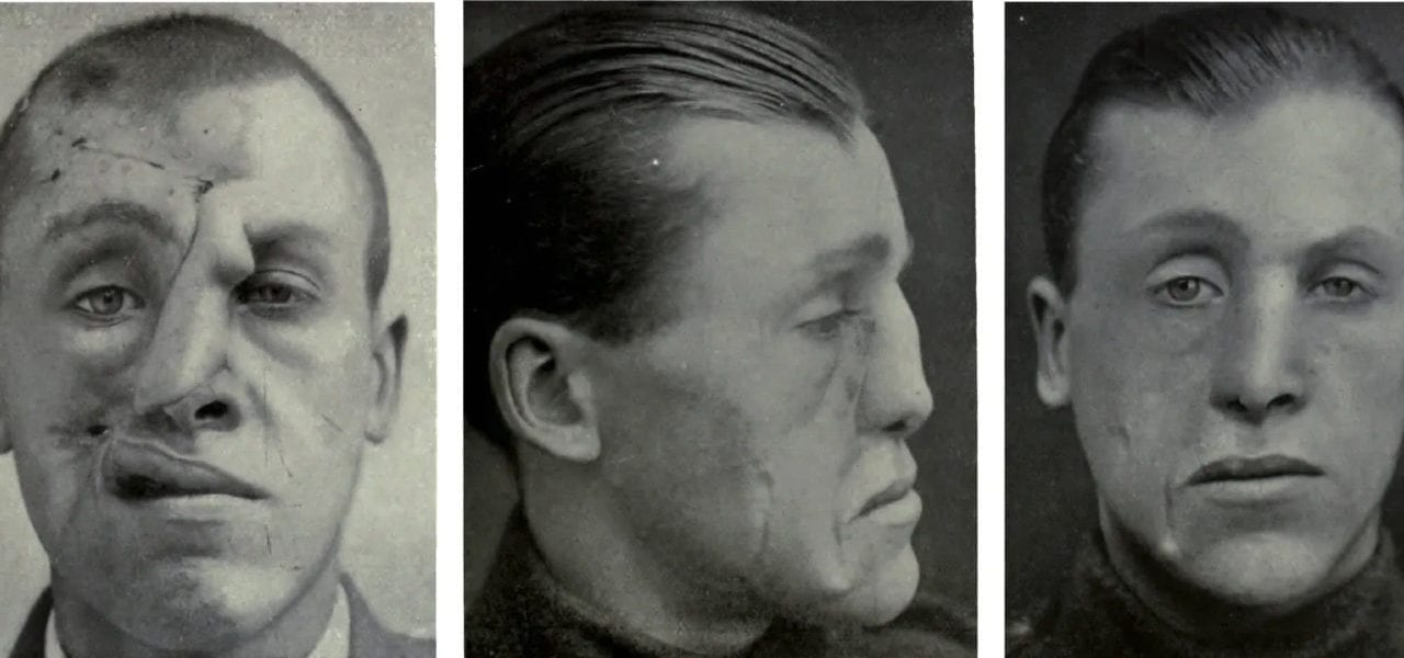 Dental School Surgeon Explores Link Between WWI Facial Trauma and Modern Plastic Surgery