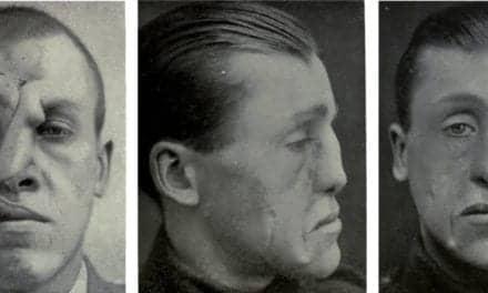 Dental School Surgeon Explores Link Between WWI Facial Trauma and Modern Plastic Surgery