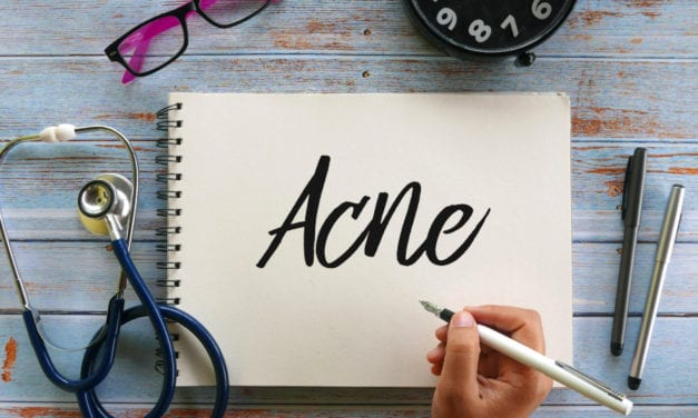 Signs Your Hormones Might Be To Blame for Your Adult Acne