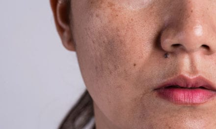 Derm-Approved Ways to Get Rid of Dark Spots on Every Skin Tone