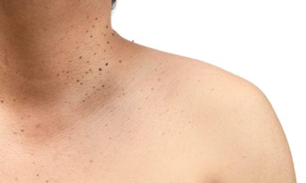 What Causes Skin Tags—and How to (Finally) Get Rid of Them