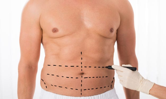 Tummy Tuck Growing in Popularity Among Men