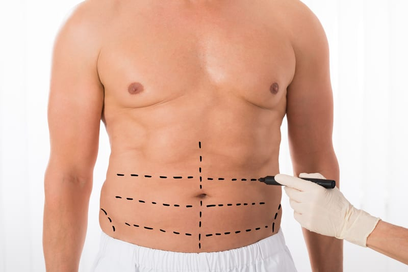 Tummy Tuck Growing in Popularity Among Men