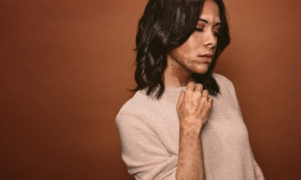 Vitiligo Is Linked to Increased Risk for Psychiatric Disorders