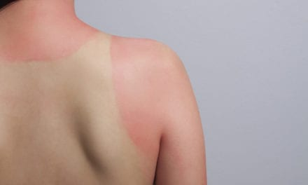 Prevalence of Multiple Sunburns Rising, Despite Increases in Sun Protective Behaviors