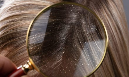 All the Reasons You Might Be Experiencing Dandruff for the First Time, According to Experts