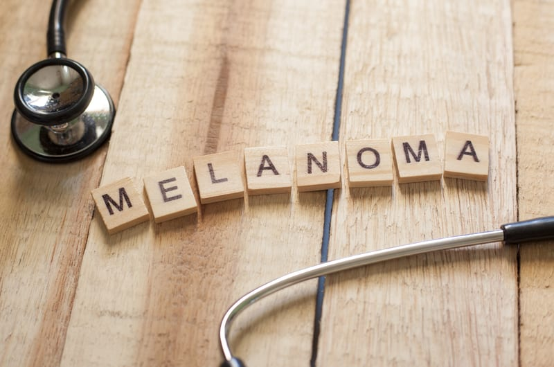 Risk Factors for Developing a Second Melanoma Identified