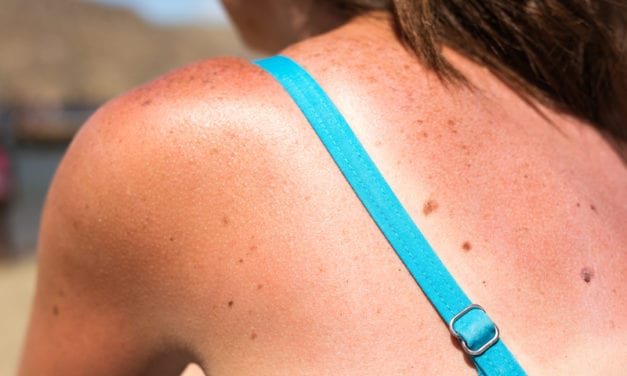 Survey: 60% of Americans Say They Have Gotten So Badly Sunburned Their Clothes Were Uncomfortable