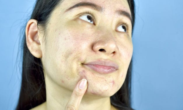 With Adult Acne, You Are What You Eat
