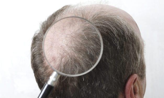 Bald Men At Higher Risk Of Severe Coronavirus Symptoms, Per Study