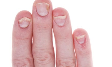 Improve Nail Psoriasis at Home with These Tips