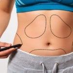 6 Plastic Surgeons Reveal the Biggest Misconceptions Patients Have About Liposuction