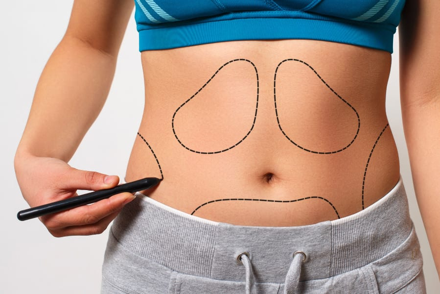 6 Plastic Surgeons Reveal the Biggest Misconceptions Patients Have About Liposuction