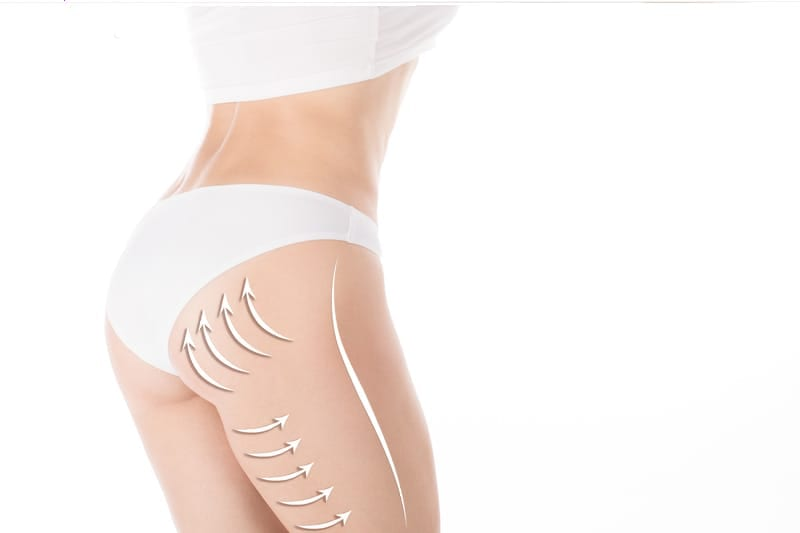 5 Things Reputable Plastic Surgeons Say Should Never Happen with Butt Augmentation