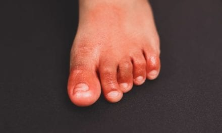 COVID Toes Are Caused By Coronavirus Infecting The Lining Of Blood Vessels, Says New Study