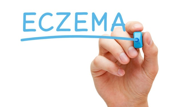 Minimal Link Between Eczema and Most Cancers