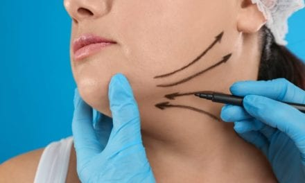 Chins Are The New Cheeks: Why Chin-Enhancing Options Are Trending