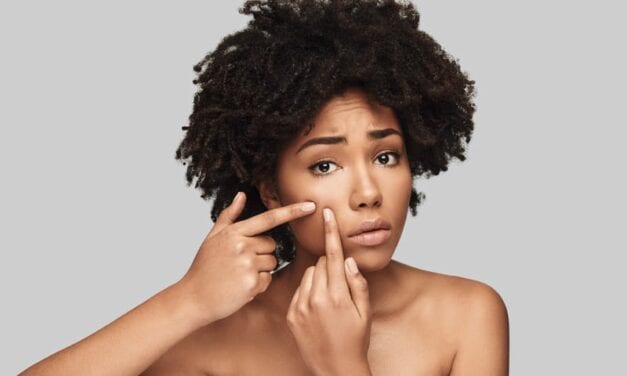 How to Treat Acne in Skin of Color