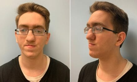 Valley Man Receives Life-Changing Facial Surgery