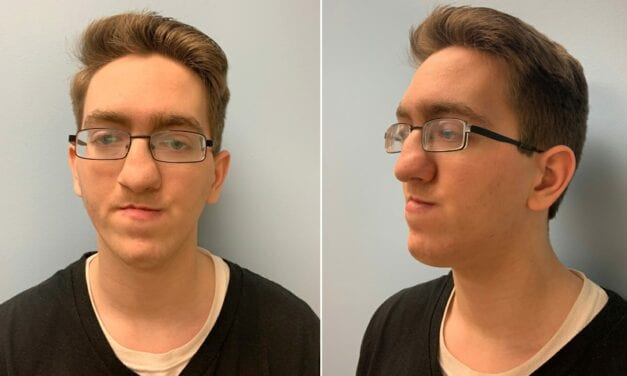 Valley Man Receives Life-Changing Facial Surgery