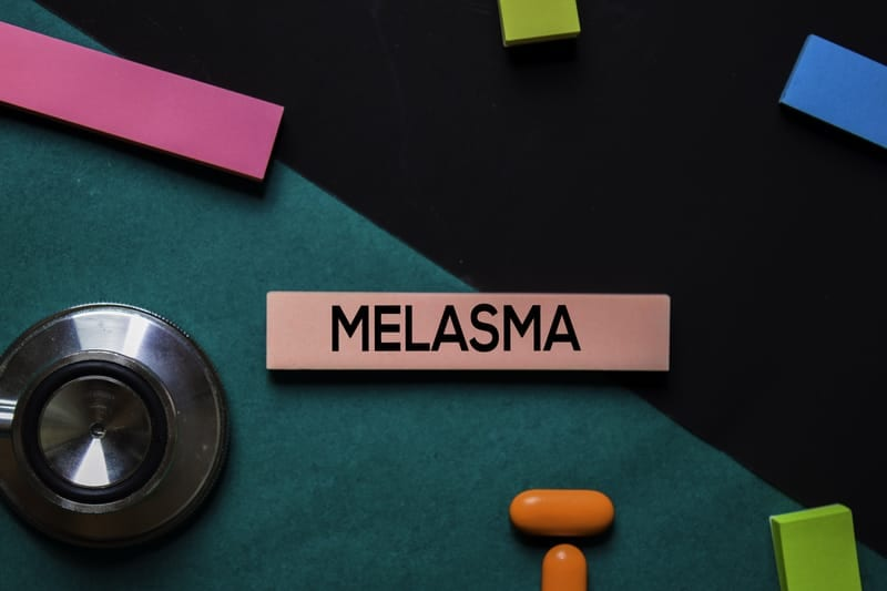 How to Treat Melasma, According to Top Skin Experts