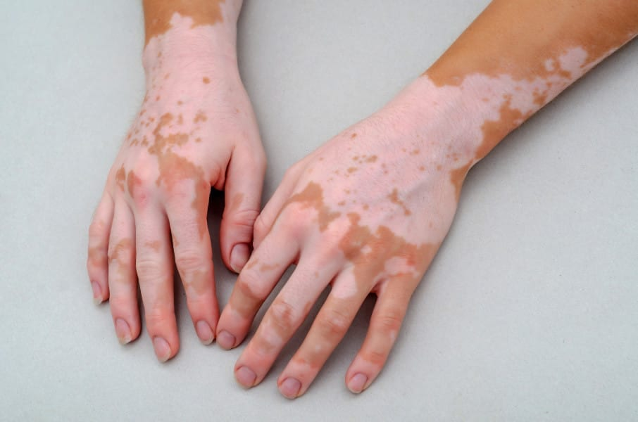 Long-Term Phototherapy for Vitiligo Associated With Reduced Risk for Heart Disease, Stroke