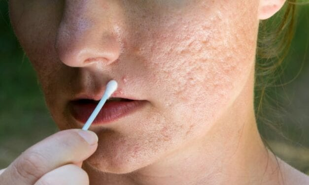 How to Fix Those Annoying Scars and Bumps Caused By Acne
