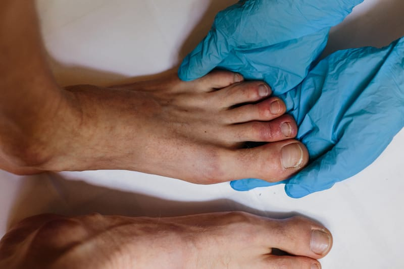 Study Reveals Why Some People Get Covid Toe Condition