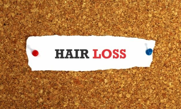 Hair Loss Might Be Prevented By Regulating Stem Cell Metabolism