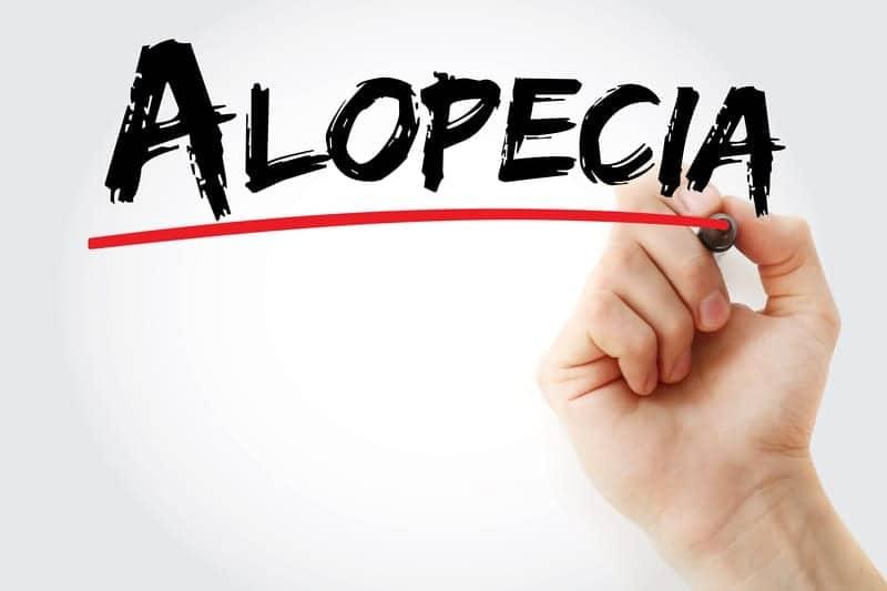 Risk Factors for Frontal Fibrosing Alopecia