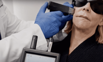 Doctors Investigate Plume Effect of Fractional Radiofrequency Versus Laser Resurfacing