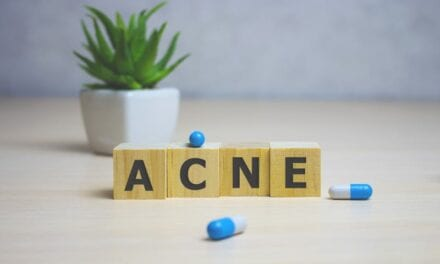 Acne Significantly Impacts Mental Health, Emphasizing Need for More Holistic Approaches to Treatment